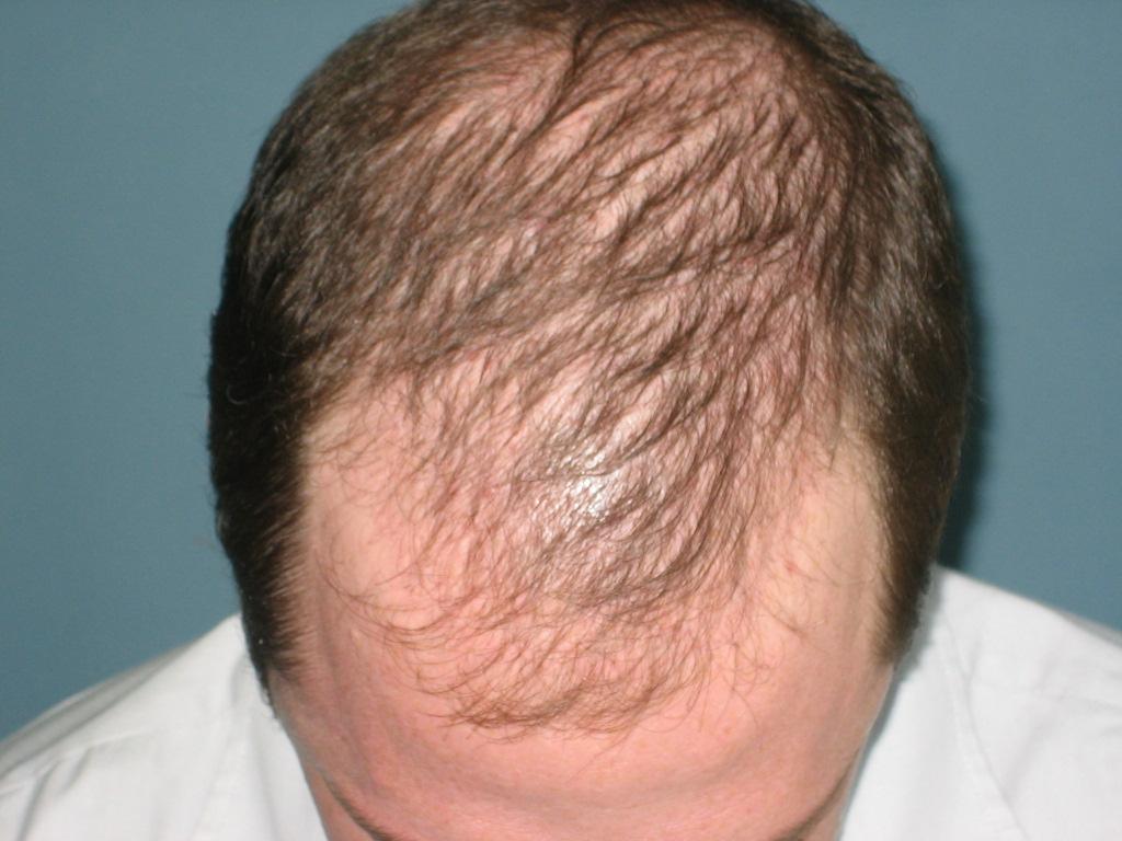 Si los cabellos son sobresaturados por el aceite