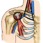 compression nervio
