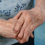 tratamiento_artritis_reumatoide