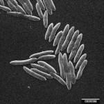 Clostridium bolteae