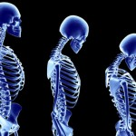 Nuevos frmacos para la osteoporosis superan a los actuales