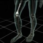 huesos-artificiales