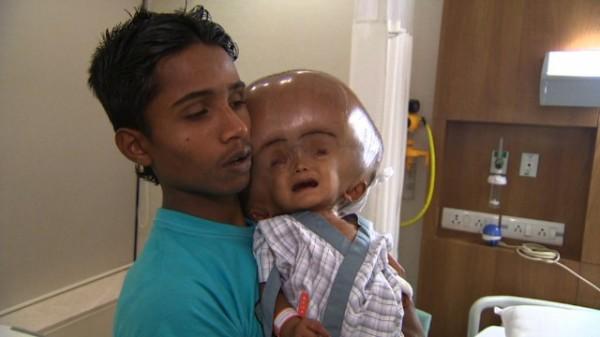 130815014849-india-swollen-baby-1-horizontal-gallery