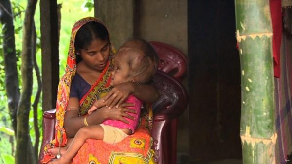 130815015517-india-swollen-baby-4-horizontal-gallery
