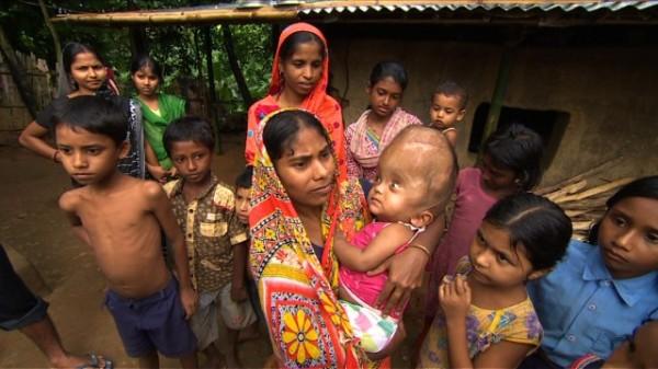 130815015550-india-swollen-baby-5-horizontal-gallery