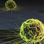 cancer_celula
