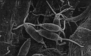 Pestalotiopsis-microspora