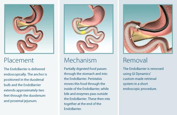 endobarrier-diagram