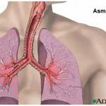 asmabronquios