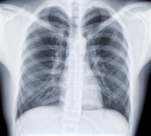 lung-x-ray
