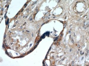 PLAC8-cancer colon