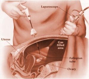 laparoscopia-300x266