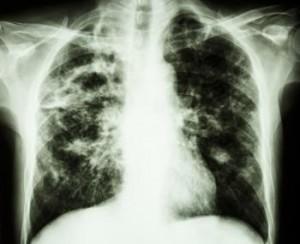 x-ray-of-pulmonary-fibrosis