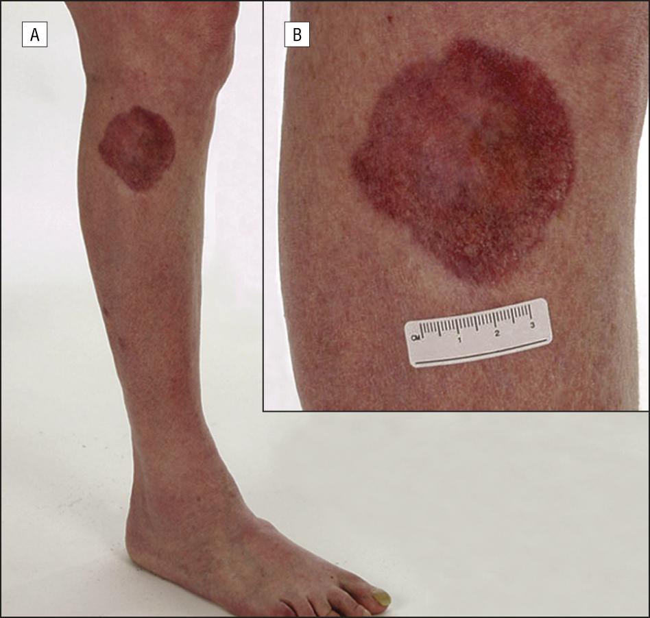 El aceite el efecto de cedro la psoriasis las revocaciones