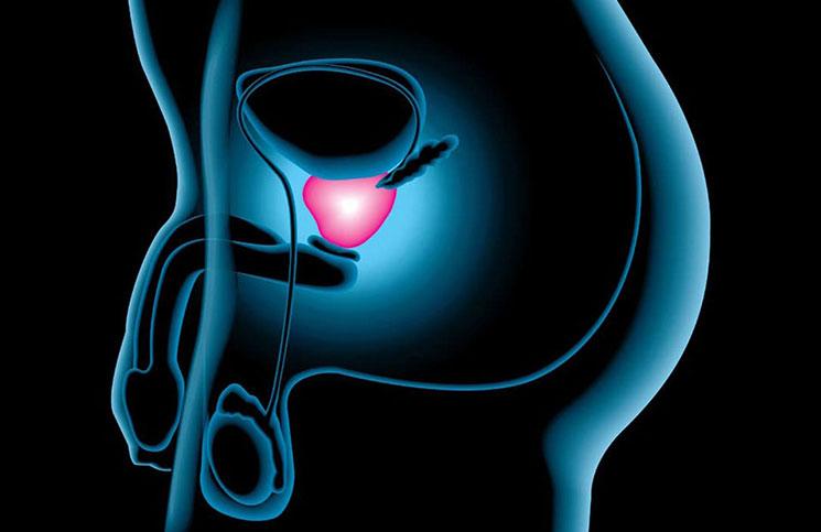 terapia de masaje de próstata de seattle