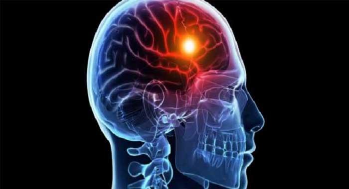 Los 200 síntomas de fibromialgia