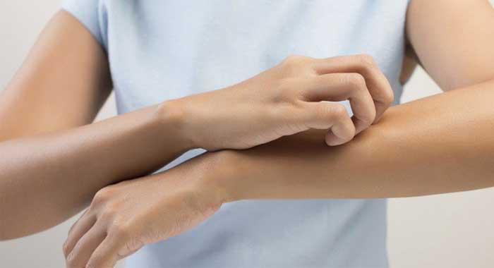 Causas de picor en todo el cuerpo